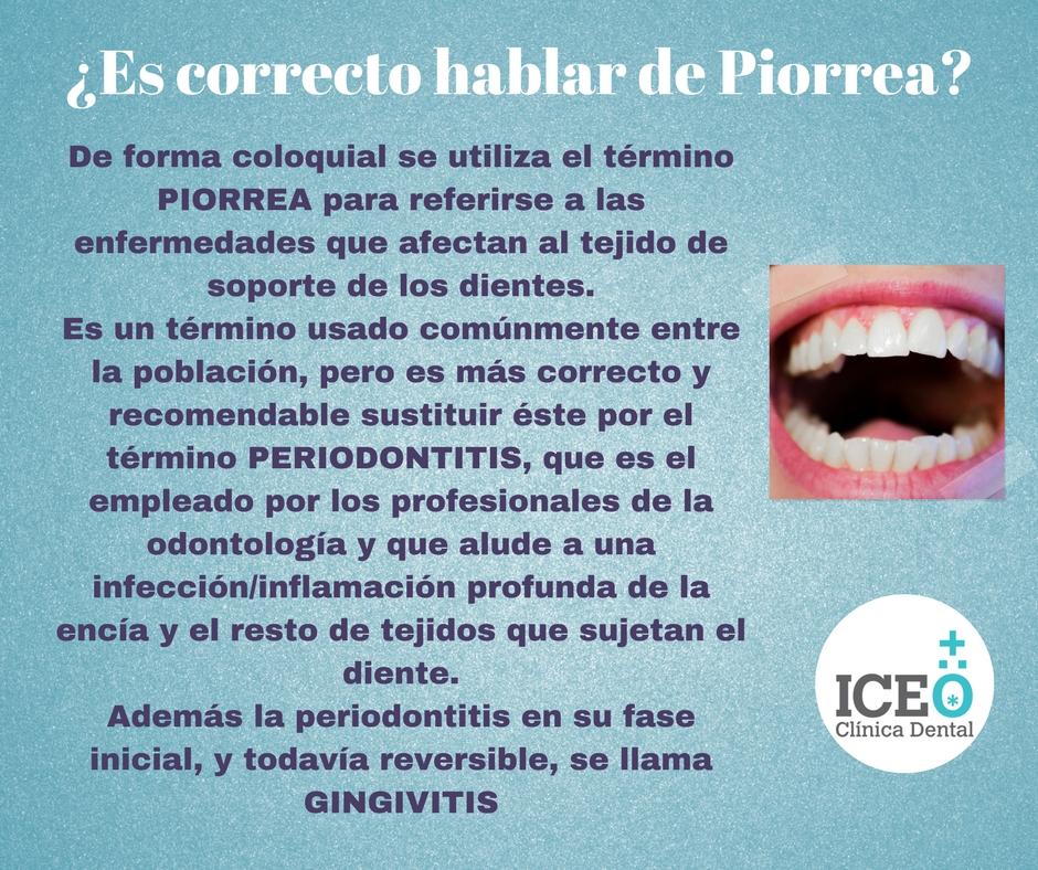 Infografías Tratamientos Dentales